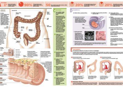 16cancerdecolon