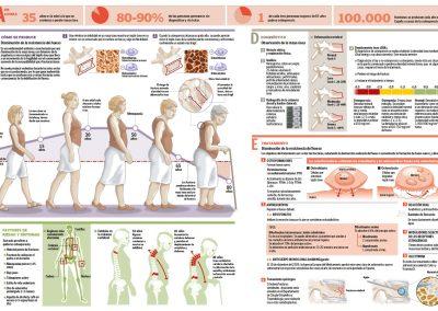 17osteoporosis